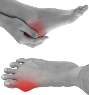 foot pain clinical trial