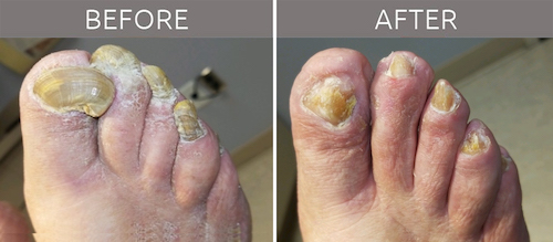 toenail care